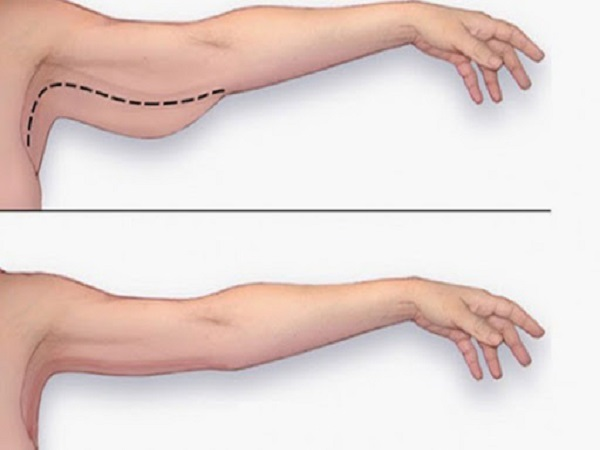 bài tập giảm bắp tay hiệu quả